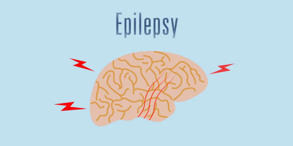 Best Marijuana Strains for Epilepsy