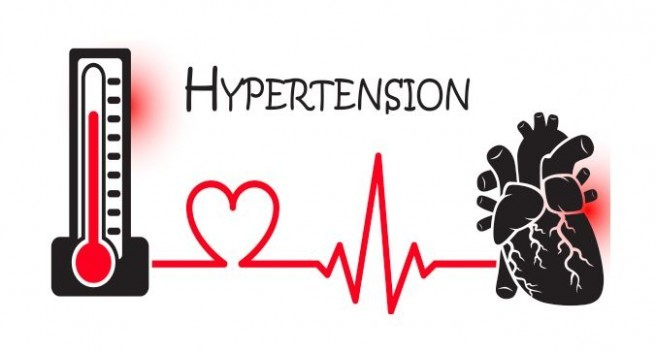 Best Marijuana Strains for Hypertension